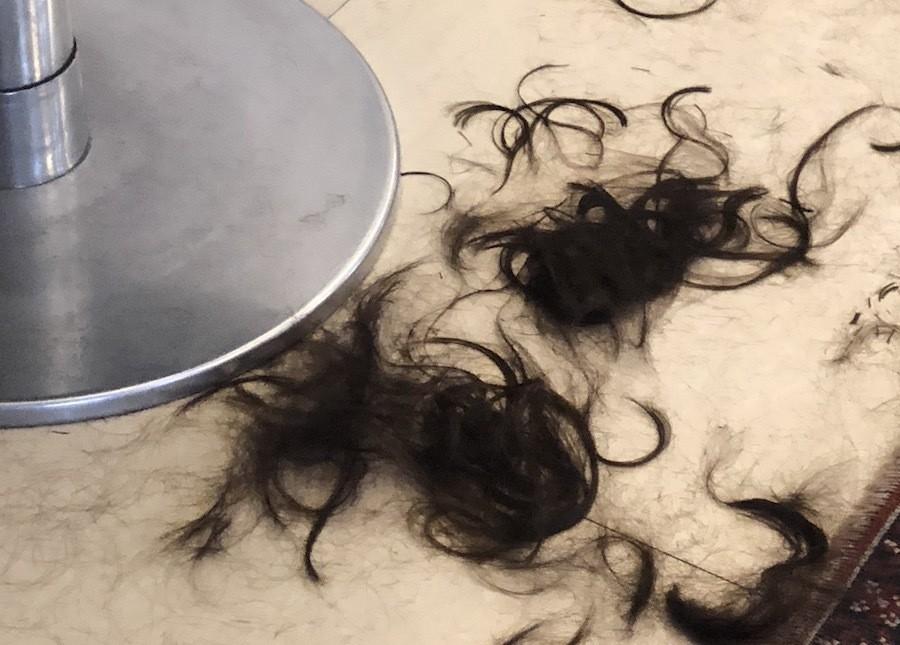 hirsutism hairloss